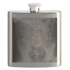 Ulcerative colitis, X-ray Flask