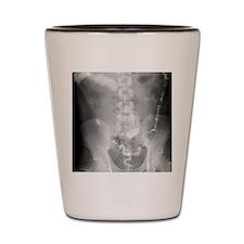 Ulcerative colitis, X-ray Shot Glass
