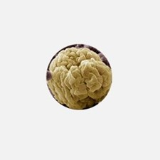 Kidney glomerulus, SEM Mini Button