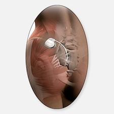 Sacral nerve stimulation implant, a Decal