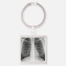 Tuberculosis, X-ray Square Keychain