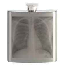 Tuberculosis, X-ray Flask
