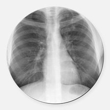 Tuberculosis, X-ray Round Car Magnet