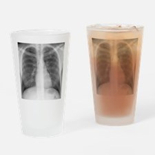 Tuberculosis, X-ray Drinking Glass