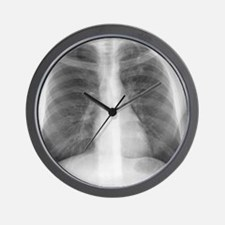 Tuberculosis, X-ray Wall Clock