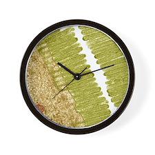 Intestinal microvilli, TEM Wall Clock