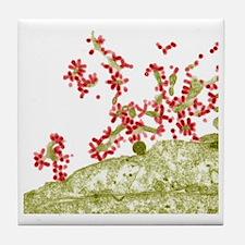 Influenza viruses, TEM Tile Coaster