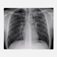 Tuberculosis, X-ray Throw Blanket