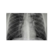 Tuberculosis, X-ray Rectangle Magnet