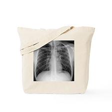 Tuberculosis, X-ray Tote Bag