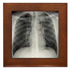 Tuberculosis, X-ray Framed Tile