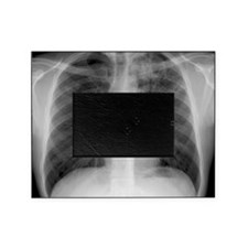 Tuberculosis, X-ray Picture Frame