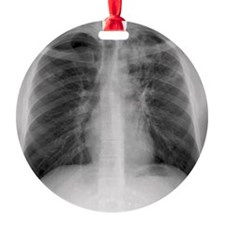Tuberculosis, X-ray Ornament