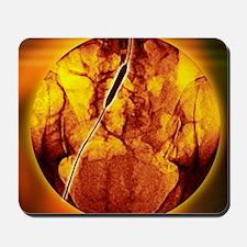 Iliac artery angioplasty, angiogram Mousepad