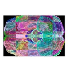 Human brain, computer art Postcards (Package of 8)
