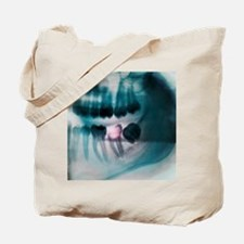 Tooth decay, X-ray Tote Bag
