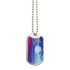 Heart pacemaker, X-ray Dog Tags