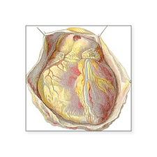 "Heart anatomy, artwork Square Sticker 3"" x 3"""