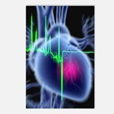 Heart attack and ECG trac Postcards (Package of 8)