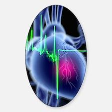 Heart attack and ECG trace Bumper Stickers