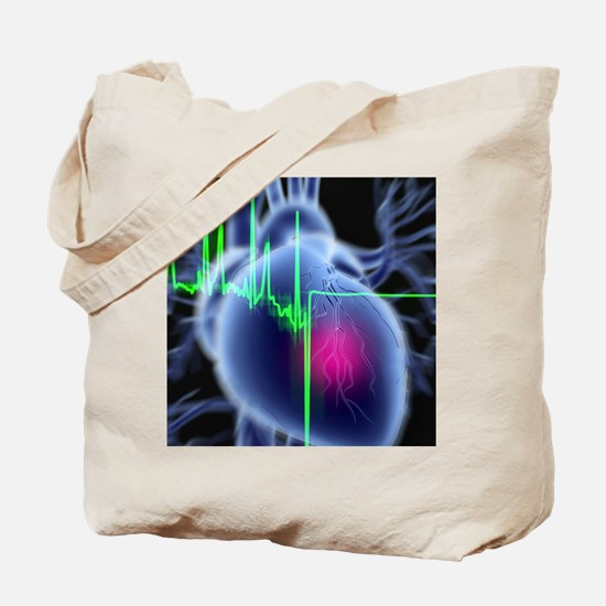 Heart attack and ECG trace Tote Bag