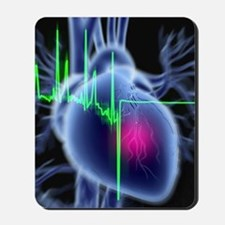 Heart attack and ECG trace Mousepad