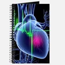 Heart attack and ECG trace Journal