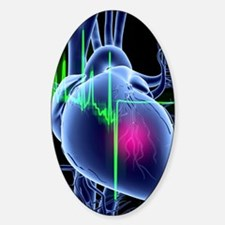 Heart attack and ECG trace Decal