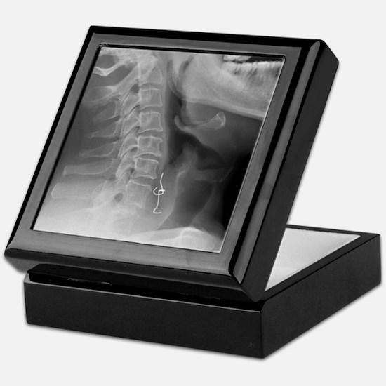 Swallowed denture, X-ray Keepsake Box