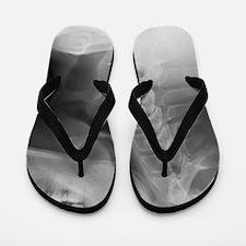 Swallowed denture, X-ray Flip Flops