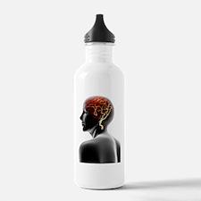 Headache, conceptual i Water Bottle