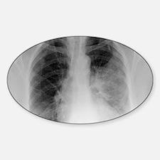 Pulmonary consolidation, X-ray Sticker (Oval)