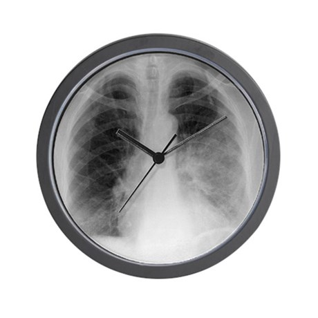 Pulmonary consolidation, X-ray Wall Clock