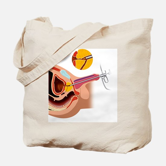 Prostate gland surgery, artwork Tote Bag