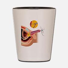 Prostate gland surgery, artwork Shot Glass