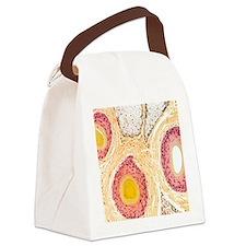 Hair follicles, light micrograph Canvas Lunch Bag