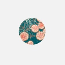 Stem cells, light micrograph Mini Button