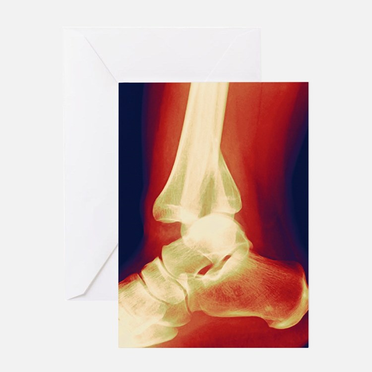 Fractured ankle, X-ray Greeting Card