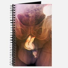 Penis prosthesis with pump, X-ray Journal