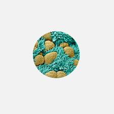 Fallopian tube cells, SEM Mini Button