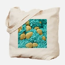 Fallopian tube cells, SEM Tote Bag