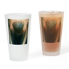 Osteoarthritis of the hip, X-ray Drinking Glass