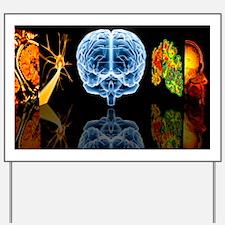 Neurology Yard Sign