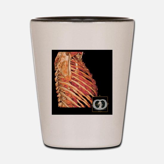 Ribcage and heart, 3D CT scan Shot Glass