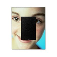 Dental braces Picture Frame