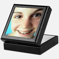 Dental braces Keepsake Box