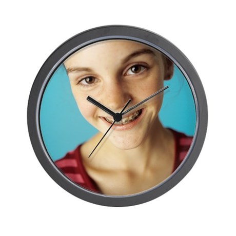 Dental braces Wall Clock