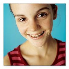 "Dental braces Square Car Magnet 3"" x 3"""