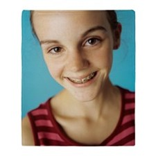 Dental braces Throw Blanket