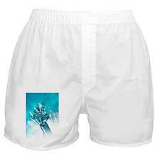 Cybernetic arm, artwork Boxer Shorts